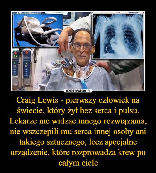 Craig Lewis - pierwszy człowiek na świecie, który żył bez serca i pulsu. Lekarze nie widząc innego rozwiązania, nie wszczepili mu serca innej osoby ani takiego sztucznego, lecz specjalne urządzenie, które rozprowadza krew po całym ciele