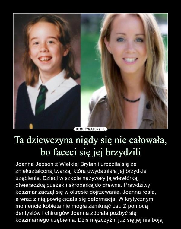 Ta dziewczyna nigdy się nie całowała,bo faceci się jej brzydzili – Joanna Jepson z Wielkiej Brytanii urodziła się ze zniekształconą twarzą, która uwydatniała jej brzydkie uzębienie. Dzieci w szkole nazywały ją wiewiórką, otwieraczką puszek i skrobarką do drewna. Prawdziwy koszmar zaczął się w okresie dojrzewania. Joanna rosła,a wraz z nią powiększała się deformacja. W krytycznym momencie kobieta nie mogła zamknąć ust. Z pomocą dentystów i chirurgów Joanna zdołała pozbyć się koszmarnego uzębienia. Dziś mężczyźni już się jej nie boją